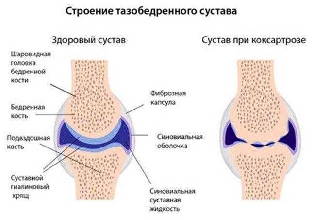 Болит тазобедренный сустав в положении лежа на боку ночью