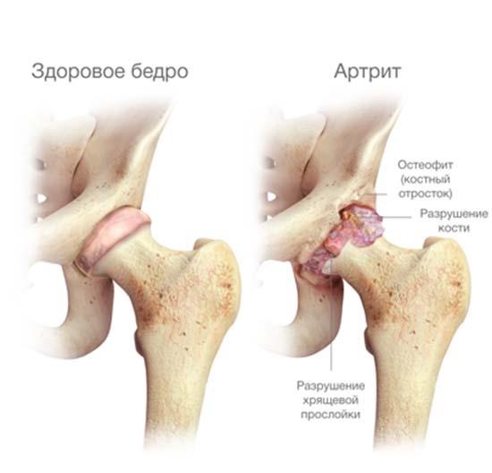 Болит тазобедренный сустав ночью лечение thumbnail