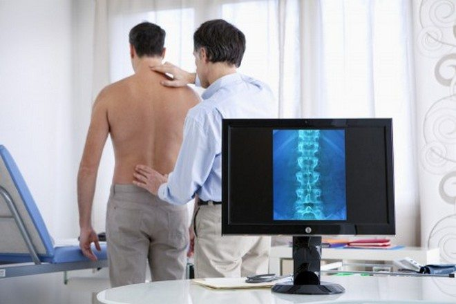 Диагностика шейного остеохондроза