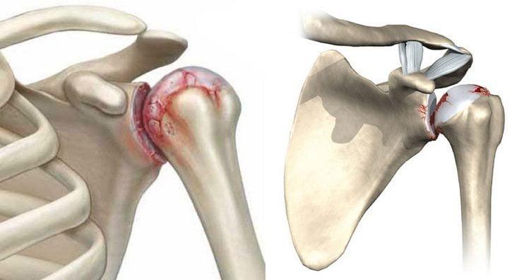 Изображение - Как лечить плечевой сустав artroz-plechevogo-sustava-simptomy-i-lechenie-v-domashnix-usloviyax