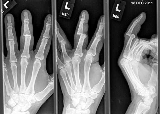 Вывих пальцев рук
