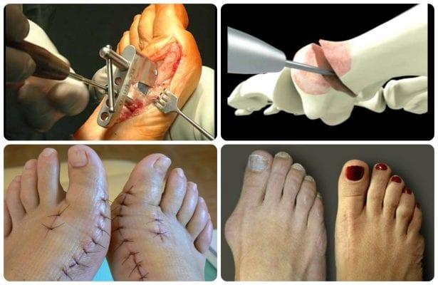 Удар косточки на ноге