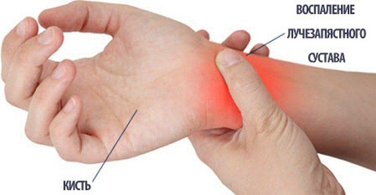 Воспаление лучезапястного сустава