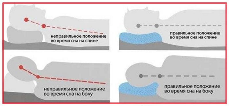 Правильно положение при шейном остеохондрозе