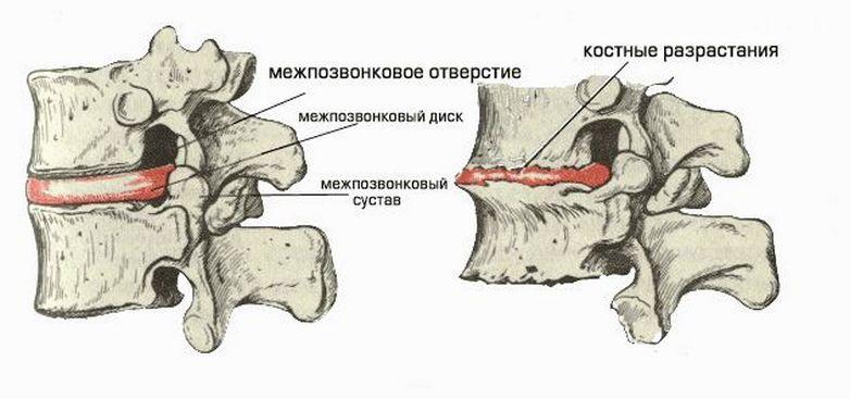 lechebnaya-gimnastika-pri-osteoxondroze-poyasnichnogo-otdela-pozvonochnika