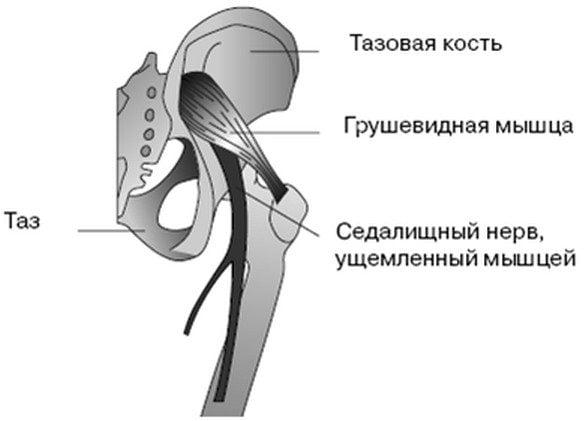 Седалищный нерв ущемленный грушевидной мышцей