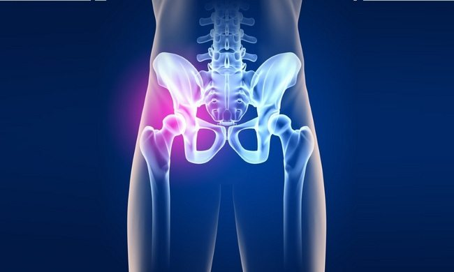 Артрит тазобедренного сустава причины и лечение заболевания