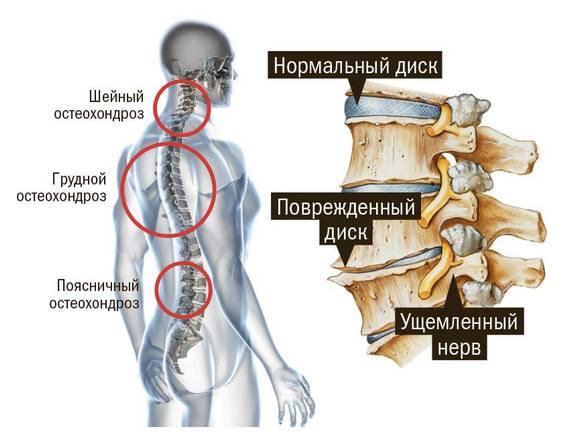 Поврежденный остеохондрозом диск