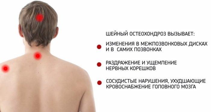 Синдромы остеохондроза