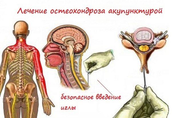 Лечение акупунктурой