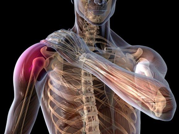 Плексопатия плечевого сплетения. Идиопатическая плексопатия плечевого сплетения.