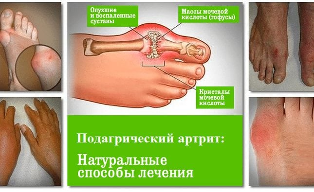 Натуральные способы лечения артрита