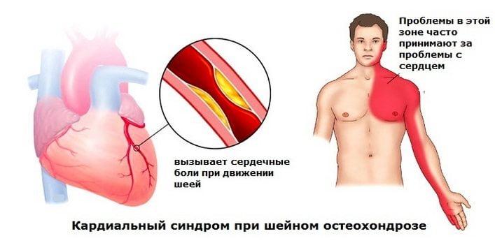 Priznaki-osteohondroza-shejnogo