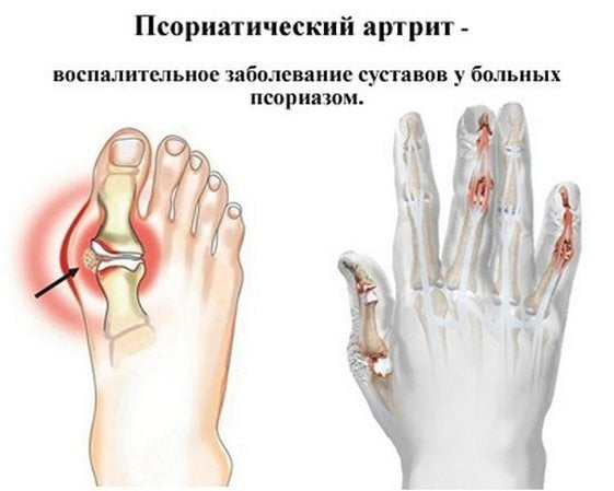 Воспаление суставов при псориазе