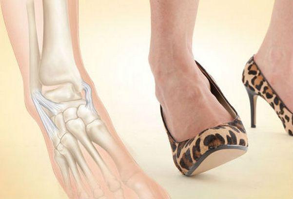Как вылечить связки на ноге