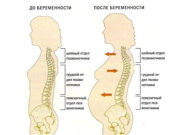 Позвоночник беременной