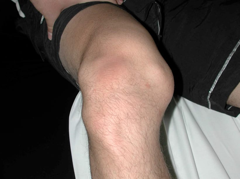 Вывих коленного сустава симптомы первая помощь и профилактика
