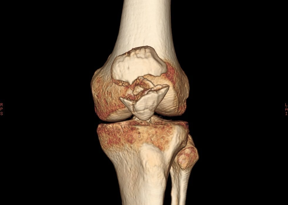 Вывих коленный сустав анатомия
