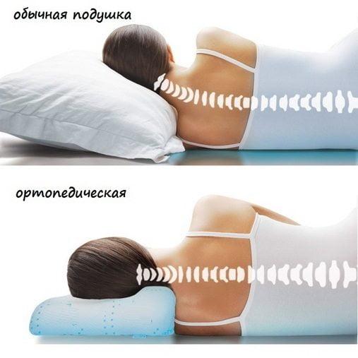Правильное положение позвоночника во сне