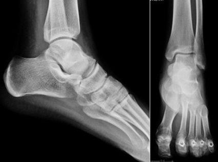 Чем зафиксировать ногу при растяжении