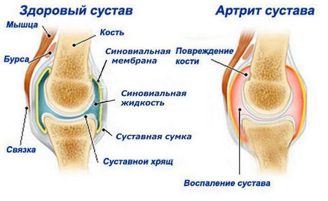 Пораженный артритом сустав