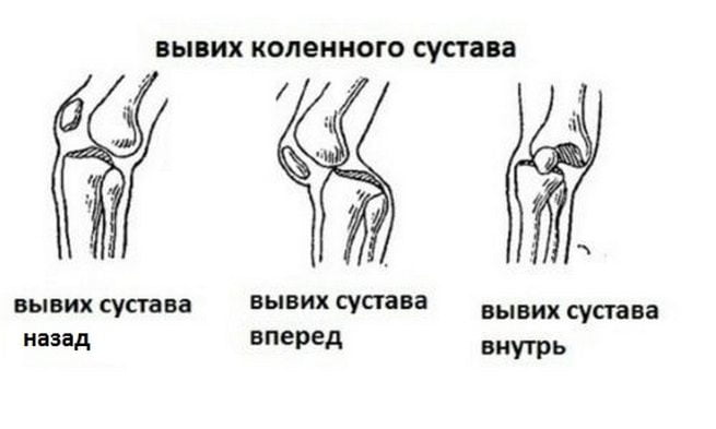 Вывих коленный сустав анатомия thumbnail