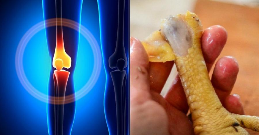 Питание при шейном остеохондрозе у женщин