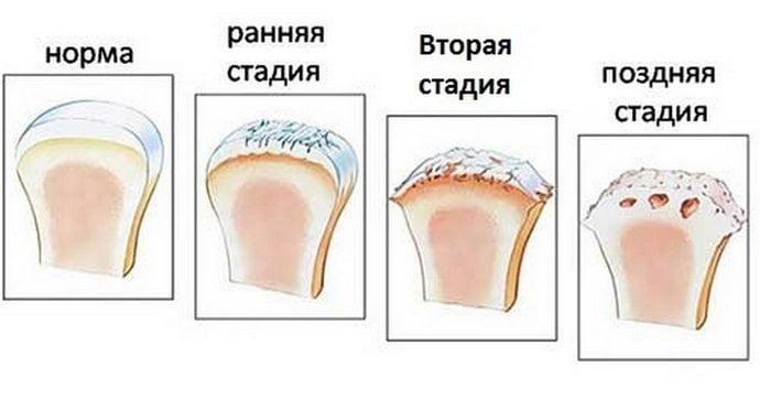 Стадии развития артроза