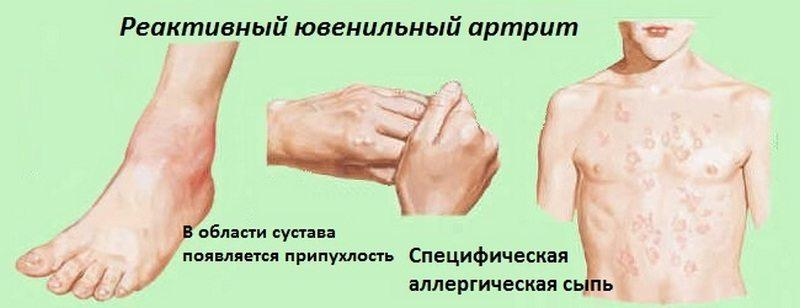Реактивный ювенильный артрит