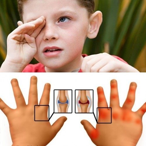Ревматоидный артрит на руках