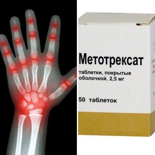 Препарат при ревматоидном артрите