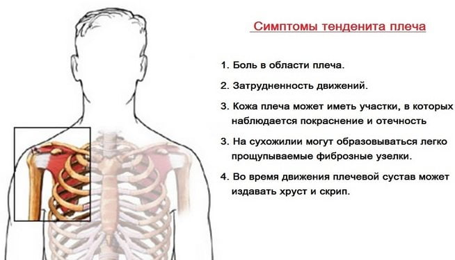 Симптомы тендинита плеча