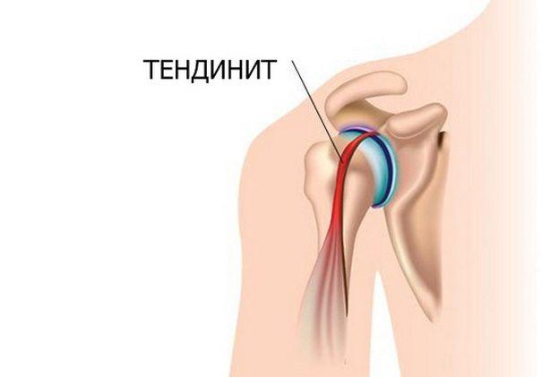 Изображение - Уколы при тендините плечевого сустава Tendinit-plecha