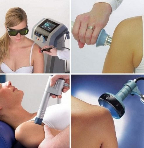 Физиолечение плечевого сустава