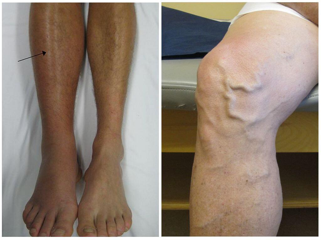 Болят ноги под коленками и ниже