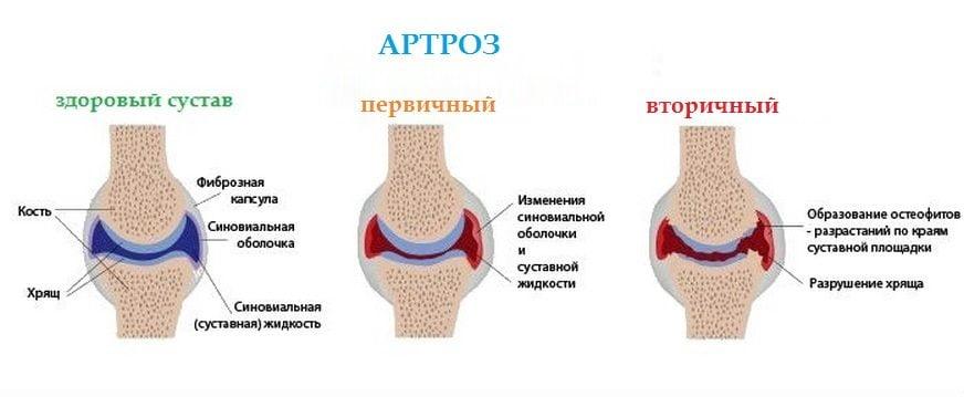 Разновидности артроза