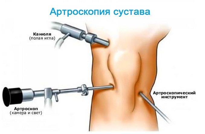 Изображение - Артрит боли в суставах и мышцах Bol-v-myshcah-i-sustavah