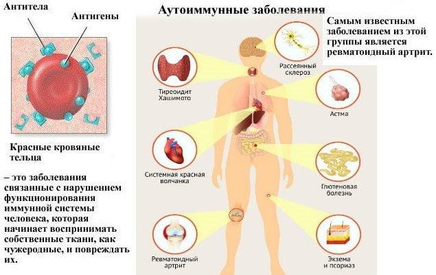 Изображение - Артрит боли в суставах и мышцах Bol-v-sustavah-i-myshcah-prichiny-lechenie