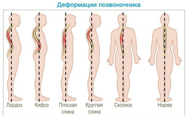 Изображение - Артрит боли в суставах и мышцах Bol-v-sustavah-i-myshcah