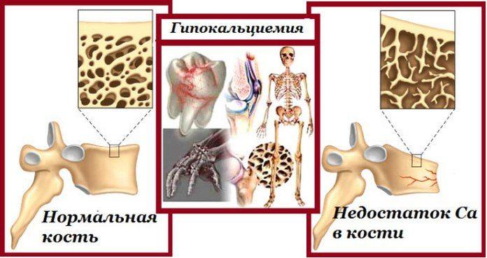 Изображение - Артрит боли в суставах и мышцах Boli-v-sustavah-i-myshcah