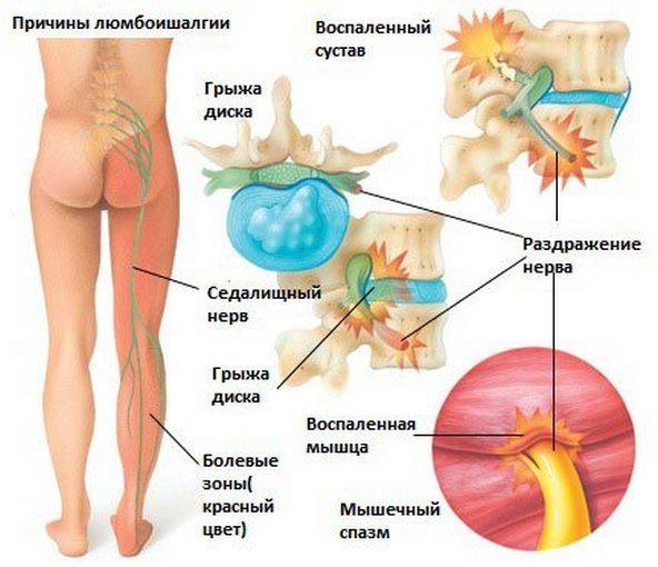 Причины люмбоишалгии