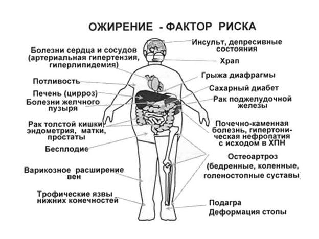Факторы риска при ожирении