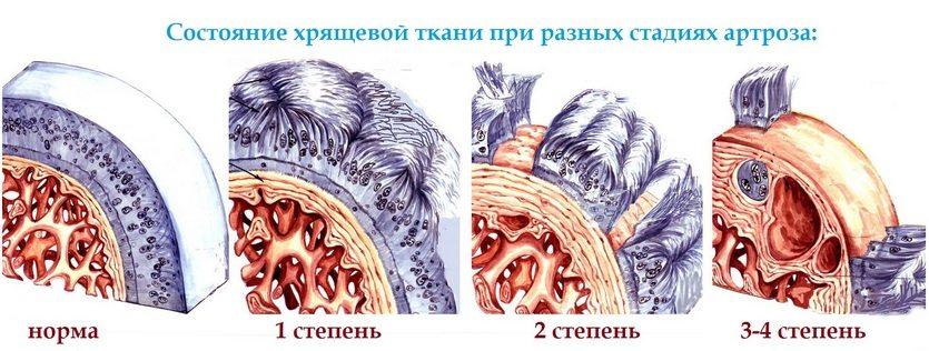 Изменение хрящевой ткани при артрозе