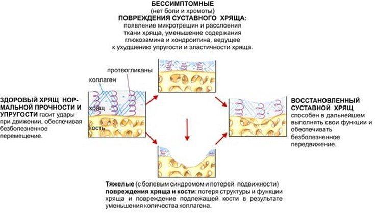 Схема стадий развития повреждений суставного хряща