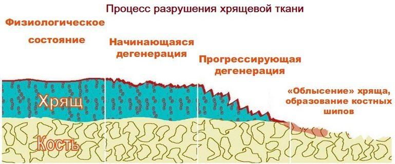 Процесс разрушения хрящевой ткани