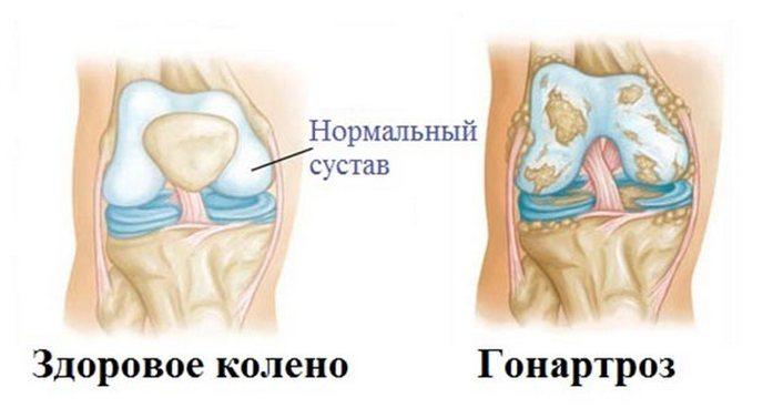Hondroprotektory-pri-artroze-kolennogo-sustava-cena