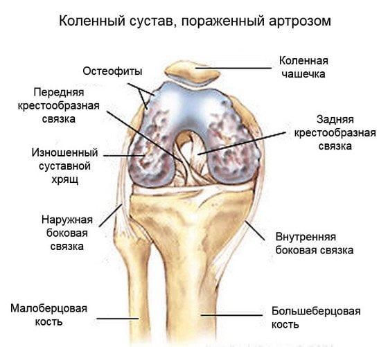 Изображение - Хондропротекторы при гонартрозе коленного сустава Hondroprotektory-pri-artroze