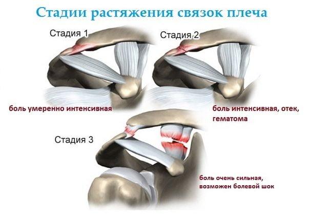 Стадии растяжения связок плеча