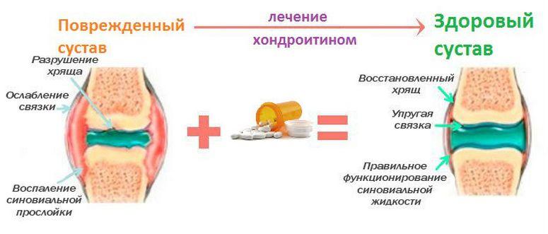 Лечение хондроитином