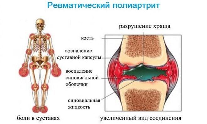 Изображение - Ревматическое воспаление суставов Poliartrit-revmaticheskij